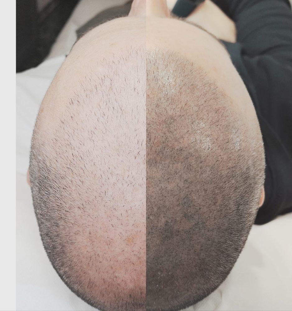Tricopigmentazione: effetti e benefici - Blog del ...